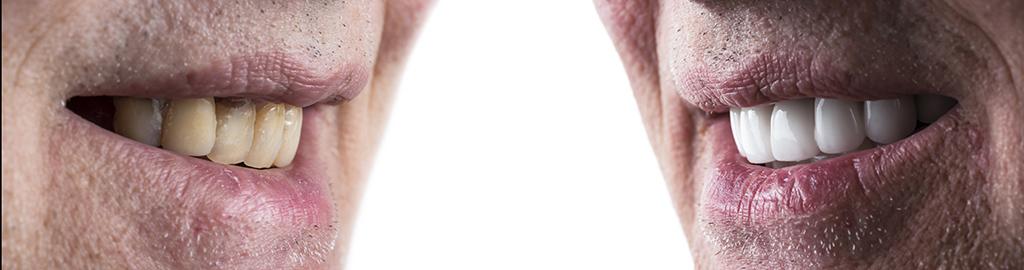 Dental Veneers Before After - Museum Dental Suites