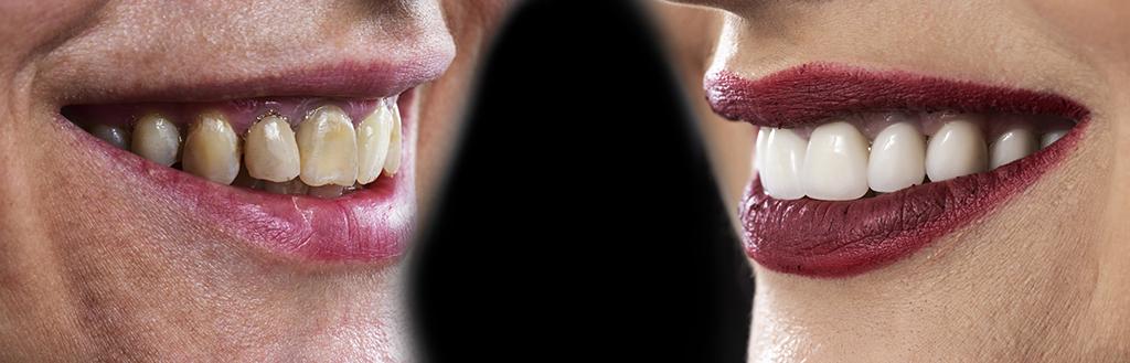 Dental Veneers for Women Before After - Museum Dental Suites