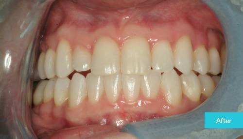 nvisalign london After