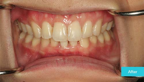 Invisalign after 5