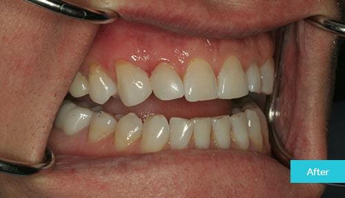 >Dental Bonding to Close a Gap After