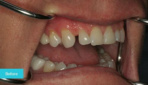 >Dental Bonding to Close a Gap before