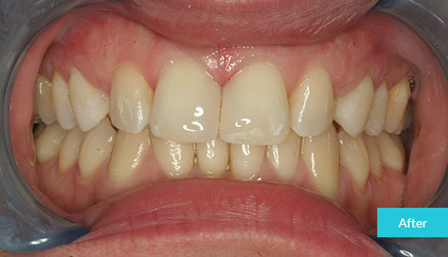 Composite Bonding Case after 1