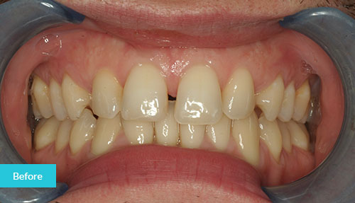 Composite Bonding Case before 1