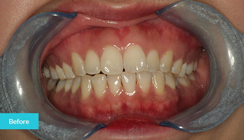 Composite Bonding Case before 3
