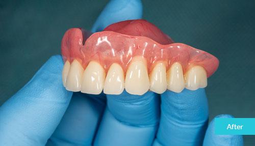 Emergency Dentures After