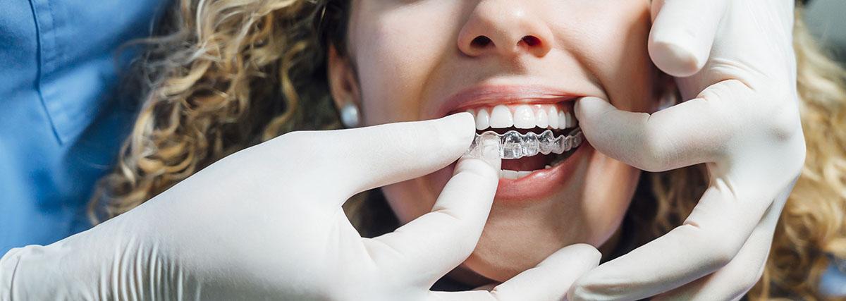 Invisalign - Museum Dental Suites