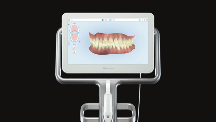 Itero 2 - Museum Dental Suites