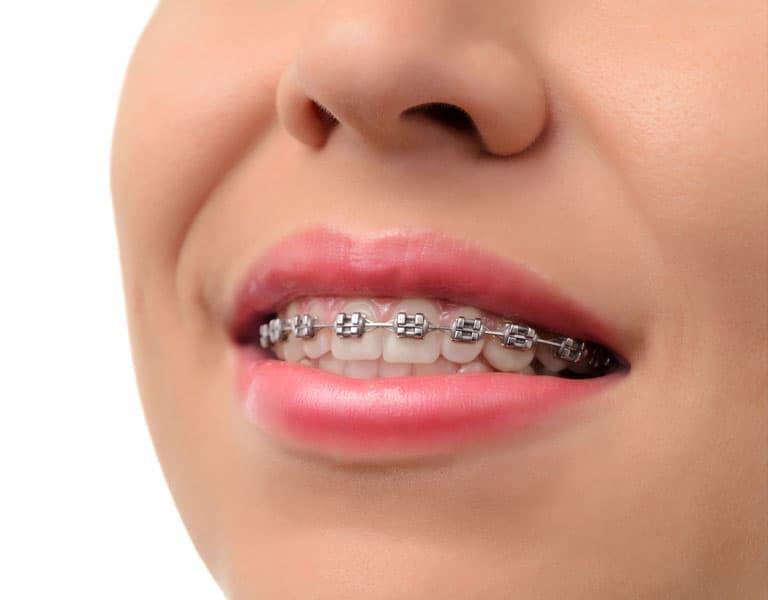 Featured Orthodontics