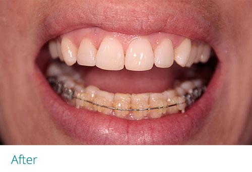 Composite edge bonding with braces after1 - Museum Dental Suites
