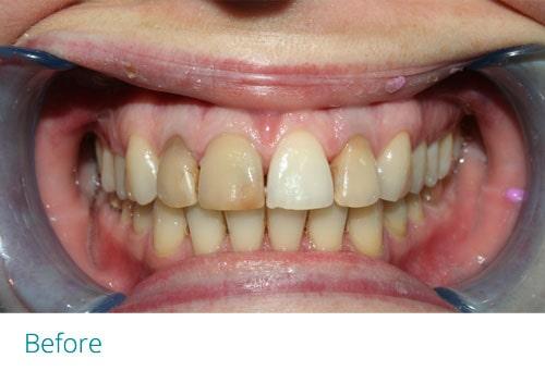 Teeth whitening before4 - Museum Dental Suites