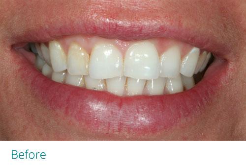 Invisalign lite 7 before3 - Museum Dental Suites
