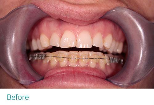 Composite edge bonding with braces before1 - Museum Dental Suites