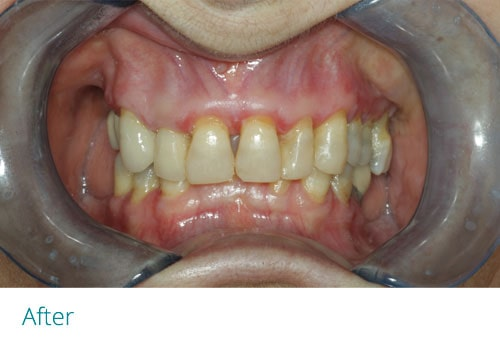 Full Mouth Reconstruction after2 - Museum Dental Suites