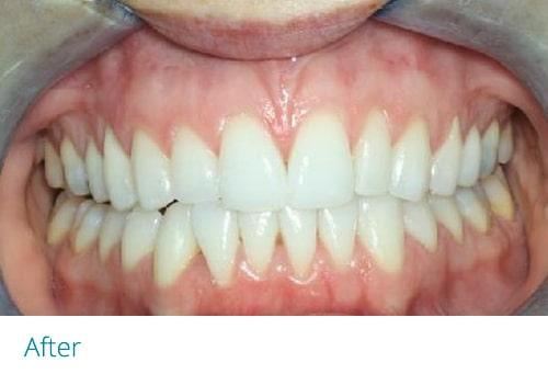 Invisalign lite after5 - Museum Dental Suites
