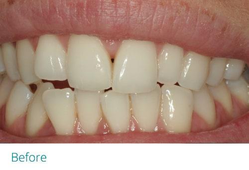 Invisalign lite before5 - Museum Dental Suites