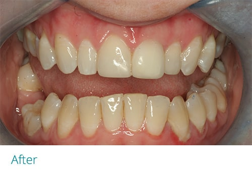 Invisalign and composite bonding after2 - Museum Dental Suites