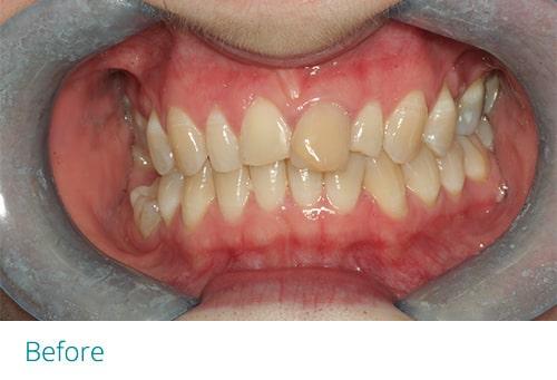 Invisalign and composite bonding before2 - Museum Dental Suites