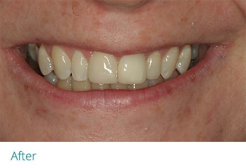 Invisalign and composite bonding after1 - Museum Dental Suites