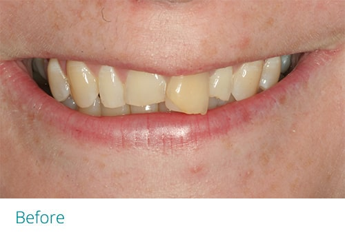 Invisalign and composite bonding before1 - Museum Dental Suites