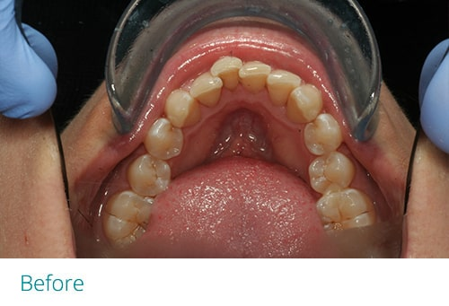 Invisalign and cosmetic contouring before4 - Museum Dental Suites