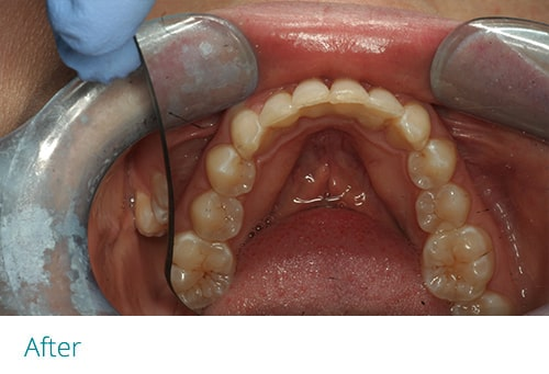Invisalign and cosmetic contouring after4 - Museum Dental Suites
