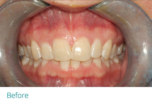 Invisalign and cosmetic contouring before - Museum Dental Suites