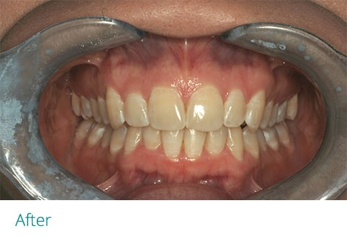 Invisalign and cosmetic contouring after - Museum Dental Suites