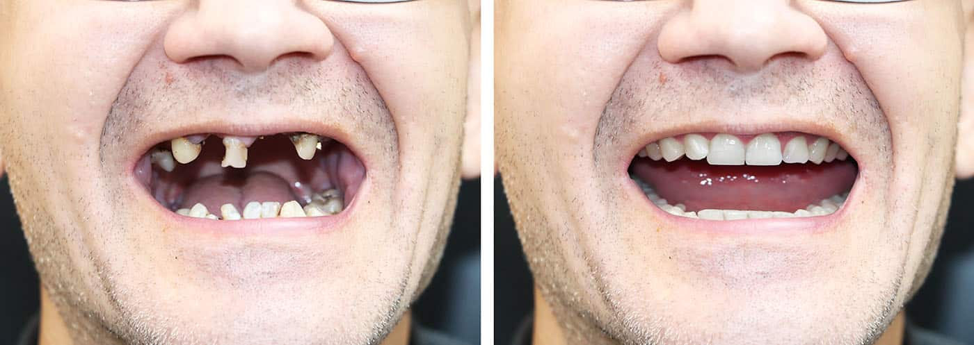 All On 4 All On 6 Dental Implants in London